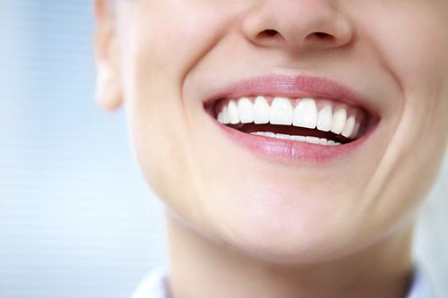 women smiling with straight white teeth